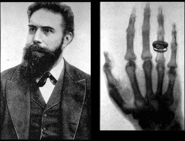 Wilhelm Conrad Roentgen, discoverer of X rays
